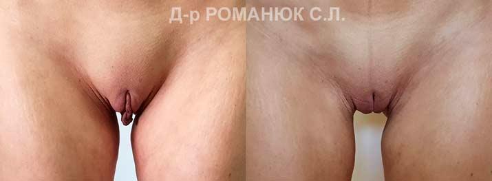 завис сверху завязывает половые губы в узел впечатлила онлайн