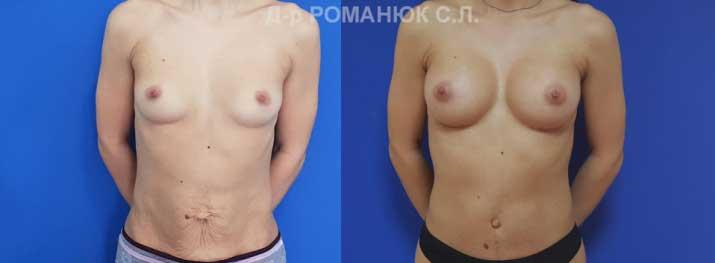 Увеличение груди в Одессе. Фото 1. Одномоментное эндопротезирование молочных желез анатомическими имплантатами Ментор 255 см3 и напряженно -боковая абдоминопластика.