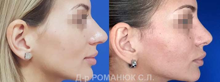 Пластика носа в Одессе. Фото 10. Открытая риносептопластика.