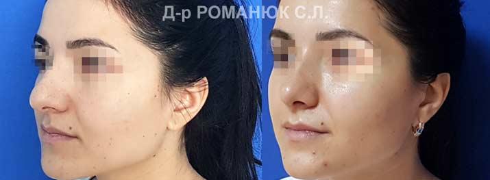 Пластика носа Одесса. Фото 3. Открыто-закрытая коррекция кончика носа.