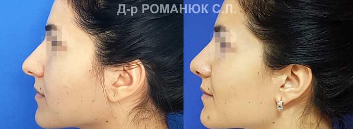 Пластика носа в Одессе. Фото 4. Открыто-закрытая коррекция кончика носа.