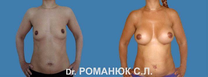 Увеличение груди в Одессе. Фото 1. Увеличение груди (молочных желез) анатомическими имплантатами. Подмышечное расположение, субмаммарный доступ. Имплантаты Mentor 330 мл.