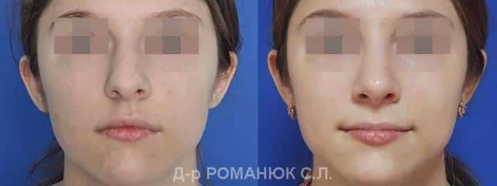 Закрытая риносептопластика - цена Одесса, д-р Романюк С.Л.