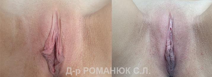 Интимная пластика Одесса (авторская методика Романюка С.Л.)