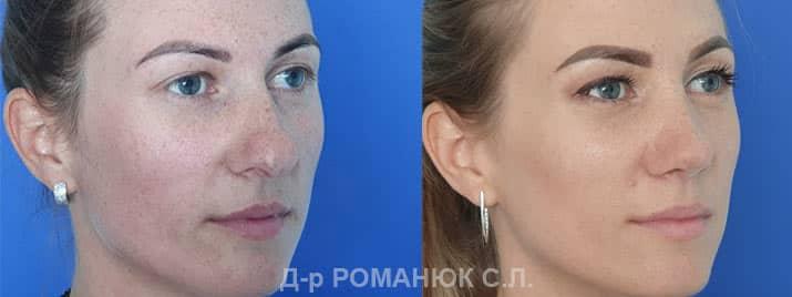 Пластика носа в Одессе - пластический хирург Романюк С.Л.