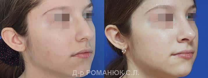 Закрытая риносептопластика - цена Украина, д-р Романюк С.Л.