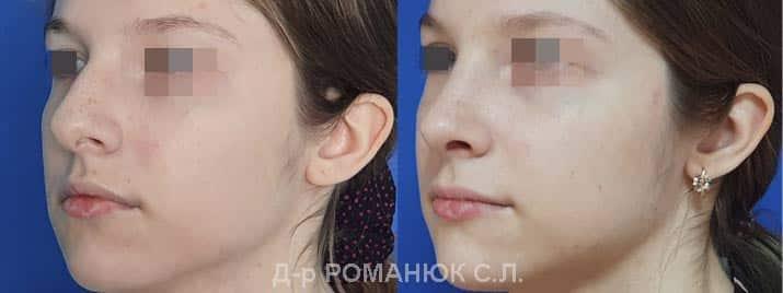 Пластика носа - цена Украина, пластический хирург Романюк С.Л.