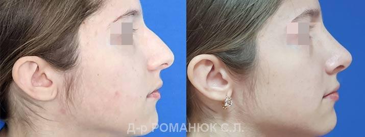 Пластика носа - цена Одесса, пластический хирург Романюк С.Л.