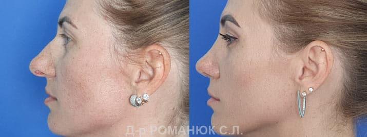 Пластика носа в Украине - пластический хирург Романюк С.Л.