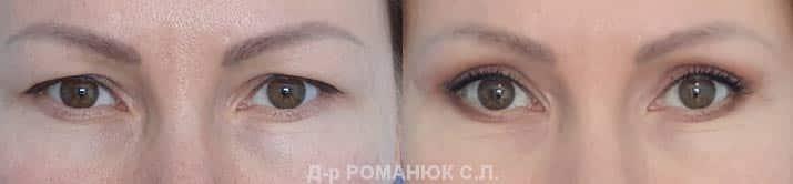Верхняя блефаропластика (пластика век) - Одесса, д-р Романюк С.Л.