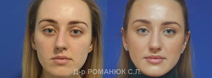 Закрытая риносептопластика цена Украина Романюк С.Л.