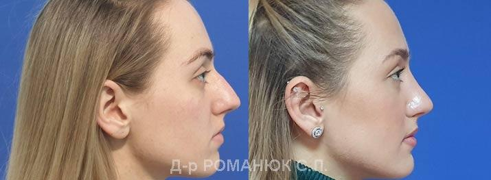 Закрытая пластика носа Одесса