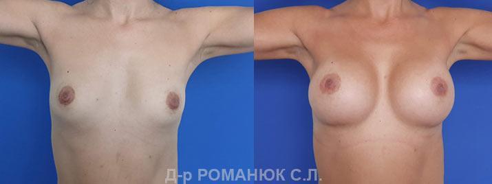 Маммопластика в Одессе цена