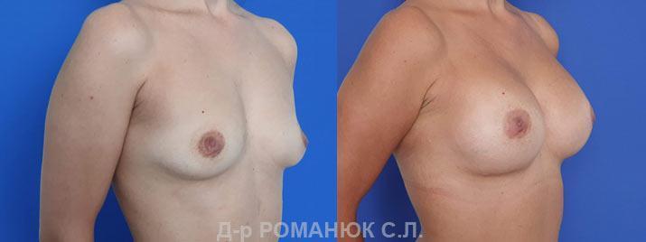 Маммопластика в Украине цена