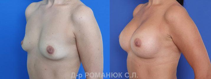 Маммопластика в Украине Романюк