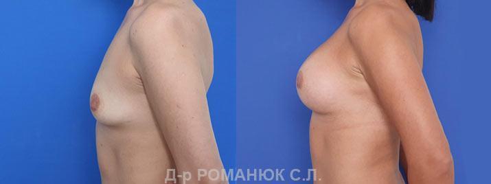 Маммопластика в Украине Романюк С.Л. цена