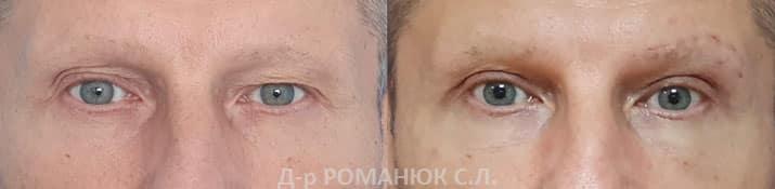 Мужская верхняя блефаропластика и коррекция ассиметрии бровей. Одесса - Романюк С.Л.