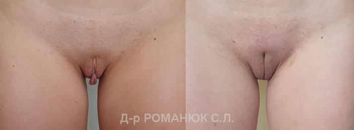 Пластика половых губ цена Одесса Романюк С.Л.