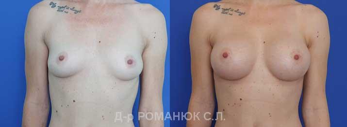 Увеличение груди (молочных желез) круглыми имплантатами - Одесса