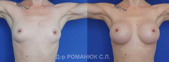 Увеличение груди (молочных желез) круглыми имплантатами - Одесса Романюк