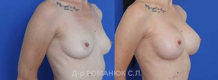 Увеличение груди (молочных желез) круглыми имплантатами - Украина цена