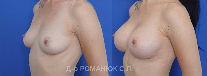 Увеличение груди (молочных желез) круглыми имплантатами - Одесса Украина