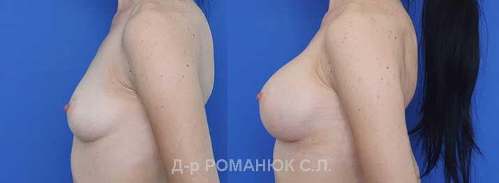 Увеличение груди (молочных желез) круглыми имплантатами - Одесса цена