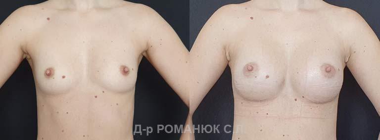 Увеличение груди (молочных желез) круглыми имплантатами. Романюк цена
