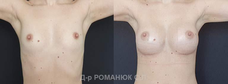 Увеличение груди (молочных желез) круглыми имплантатами. Романюк цена Украина