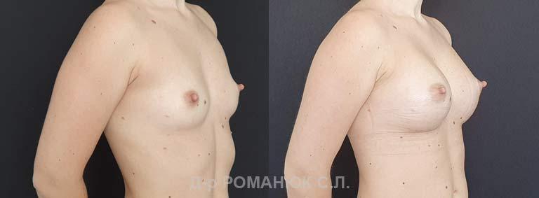 Увеличение груди (молочных желез) круглыми имплантатами. Одесса цена Украина