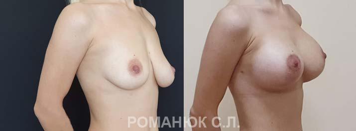 Одномоментная периареолярная подтяжка с увеличением груди круглыми Микрополиуретановыми имплантатами Политех 400мл3. Украина цена