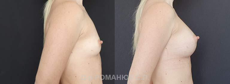 Увеличение груди (молочных желез) круглыми имплантатами. Украина Романюк