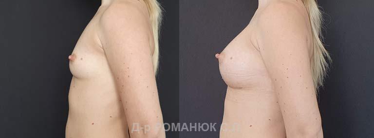 Увеличение груди (молочных желез) круглыми имплантатами. Украина Романюк цена операции