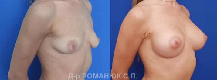 Импланты Политех микрополиуретановые Opticon 345мл. Увеличение груди в Одессе. Романюк