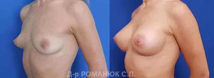 Импланты Политех микрополиуретановые Opticon 345мл. Увеличение груди. Романюк