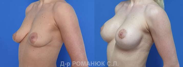 Одномоментная периареолярная подтяжка с увеличением груди круглыми имплантами нового поколения Политех Bi-Lite 390 мл. Фото 4.
