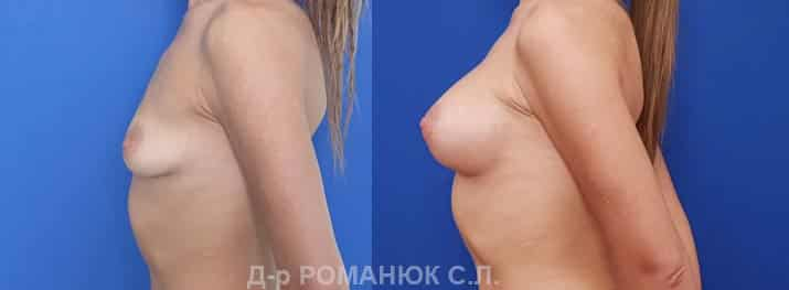 Одномоментная периареолярная подтяжка с увеличением груди круглыми имплантами нового поколения Политех Bi-Lite 390 мл. Фото 6.