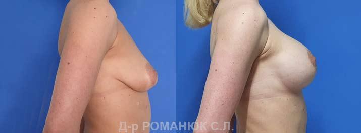 Одномоментная периареолярная подтяжка с увеличением груди круглыми имплантами нового поколения Политех Bi-Lite 390 мл. Фото 5.