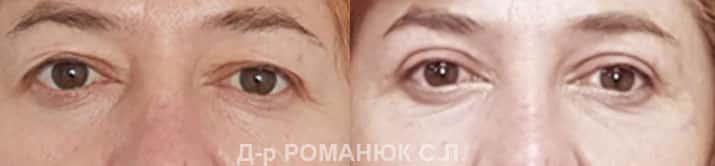 Верхняя блефаропластика в Одессе - 01 июня 2020 г.