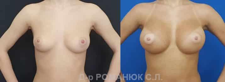 Круглые имплантаты нового поколения Политех Bi-Lite. Фото 1.