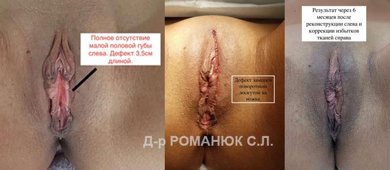 Вторичная интимная пластика, реконструкция половых губ - Одесса - Романюк