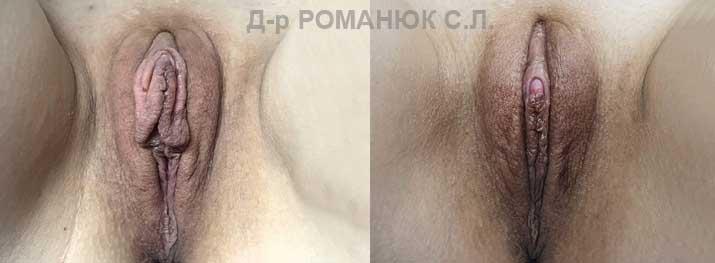 Пластика половых губ в Украине (г.Одесса). Д-р Романюк С.Л.