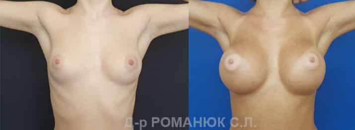 Круглые имплантаты нового поколения Политех Bi-Lite. Фото 2.