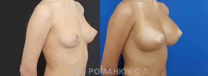 Круглые имплантаты нового поколения Политех Bi-Lite. Фото 3.