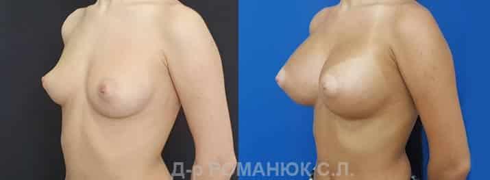 Круглые имплантаты нового поколения Политех Bi-Lite. Фото 4.