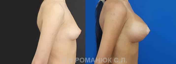 Круглые имплантаты нового поколения Политех Bi-Lite. Фото 5.
