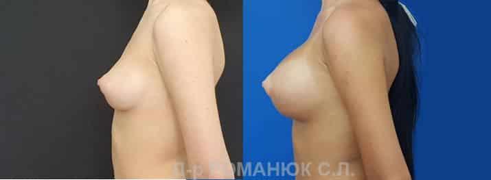 Круглые имплантаты нового поколения Политех Bi-Lite. Фото 7.