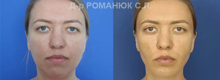Оморфиопластика-- комплекс операций направленных на улучшение пропорций и контуров лица. Фото 1.