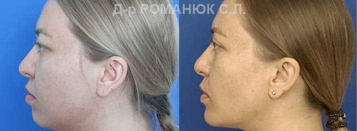 Оморфиопластика-- комплекс операций направленных на улучшение пропорций и контуров лица. Фото 3..