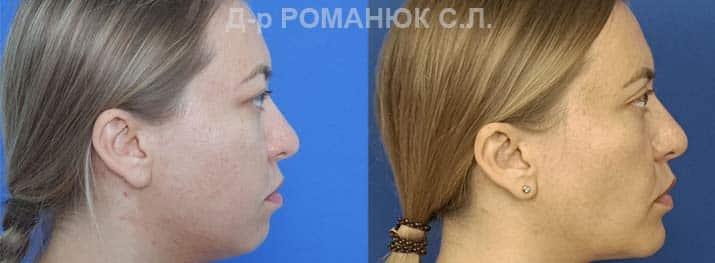 Оморфиопластика-- комплекс операций направленных на улучшение пропорций и контуров лица. Фото 2.